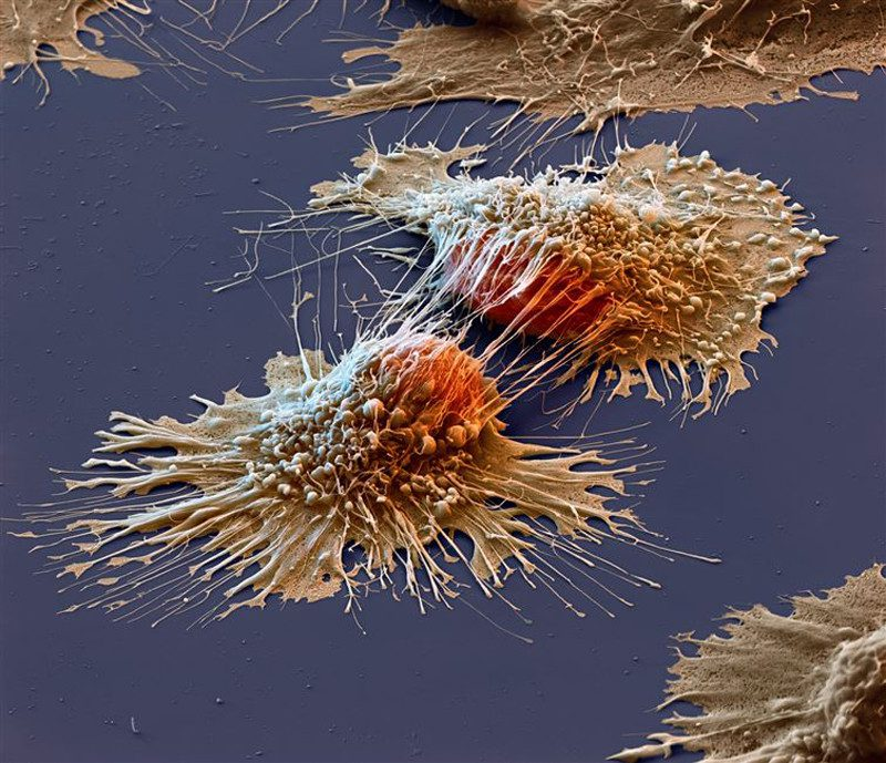 Cancer                                                            cell close up