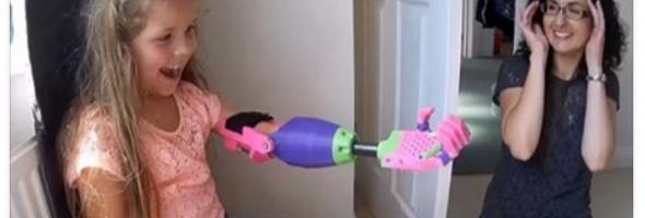 3d-printed arm