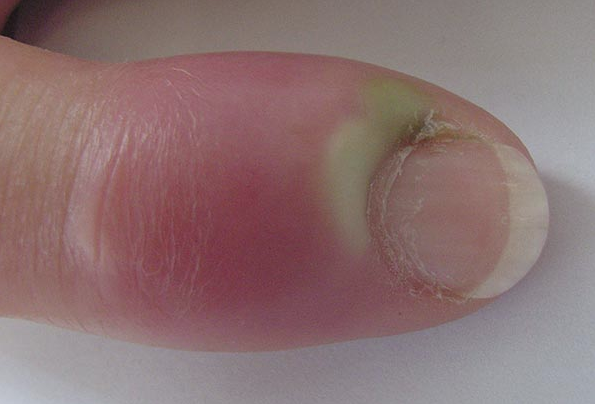 how to help skin peelings around toe nails