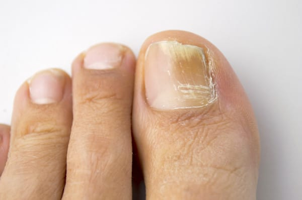 how to kill toenail fungus spores in shoes