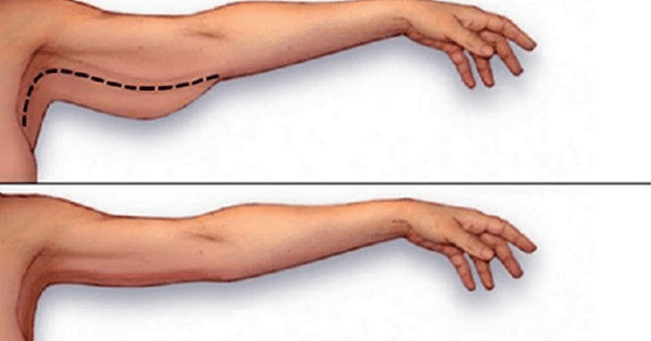 arm fat exercises
