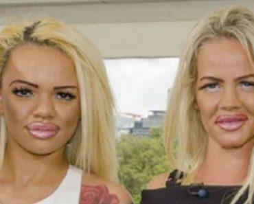 plastic surgery fail