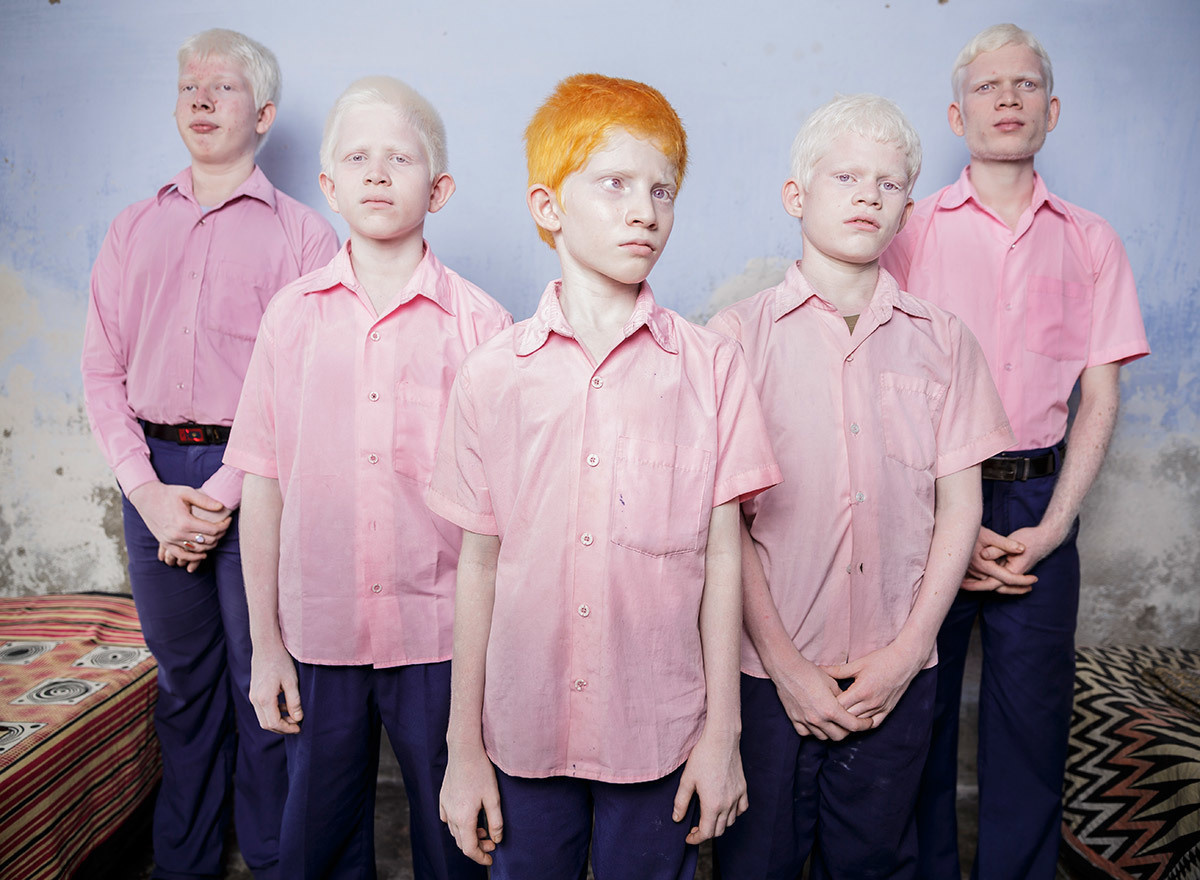 Blind albino boys at a mission school for the blind in West Bengal, India, 2013.
