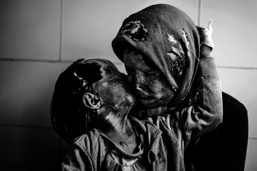 A mother and her 3 year-old daughter, victims of an acid attack.
