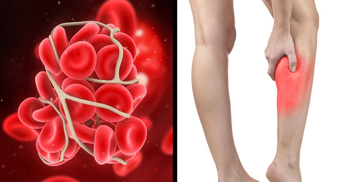 Image Result For Can Blood Clots