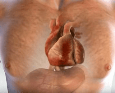 heart attack signs & symptoms