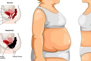 get rid of stomach bloat