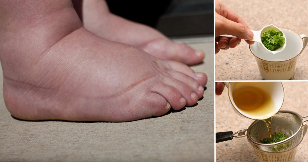 natural remedy swollen legs