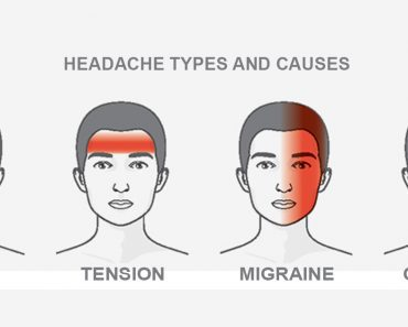 type of headache
